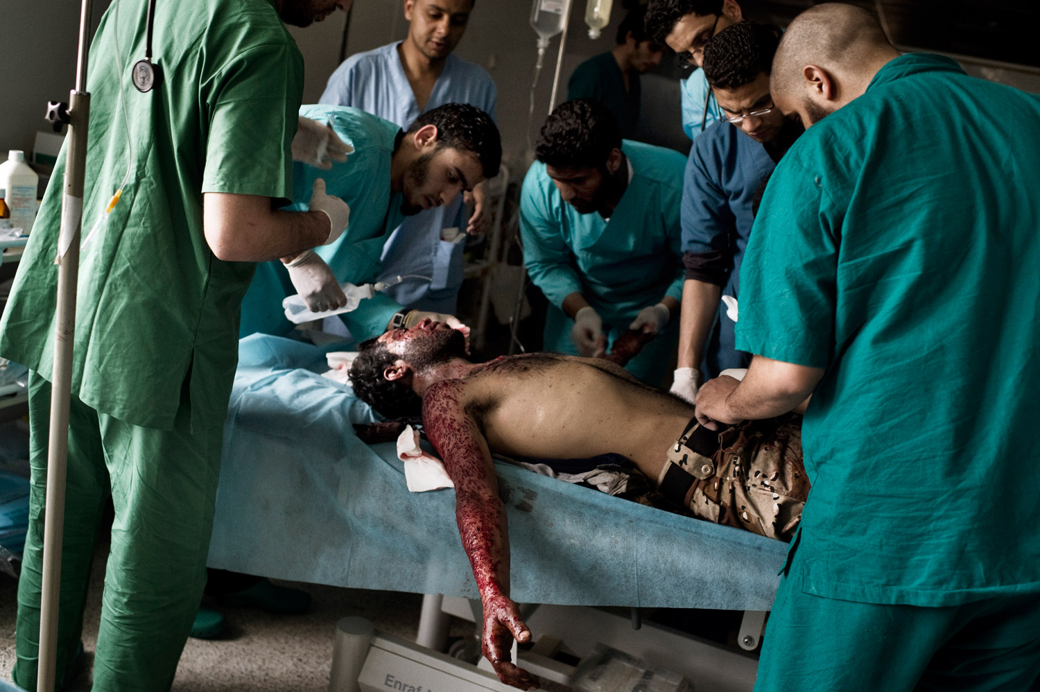 A wounded rebel is treated at the hospital in Ras Lanuf, March 29, 2011.