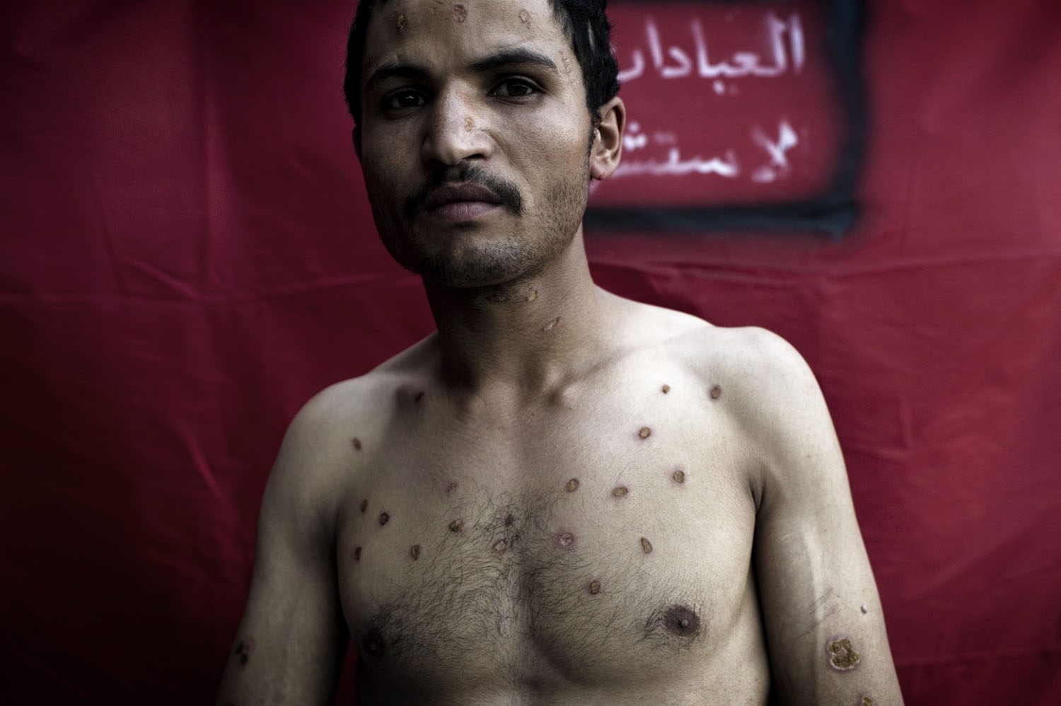 Nabel Ali Mohamed, 28, receives treatment at a makeshift field hospital in Sana'a. While protesting, Nabel was detained and tortured by security forces. They used his body as an ashtray, May 16, 2011.