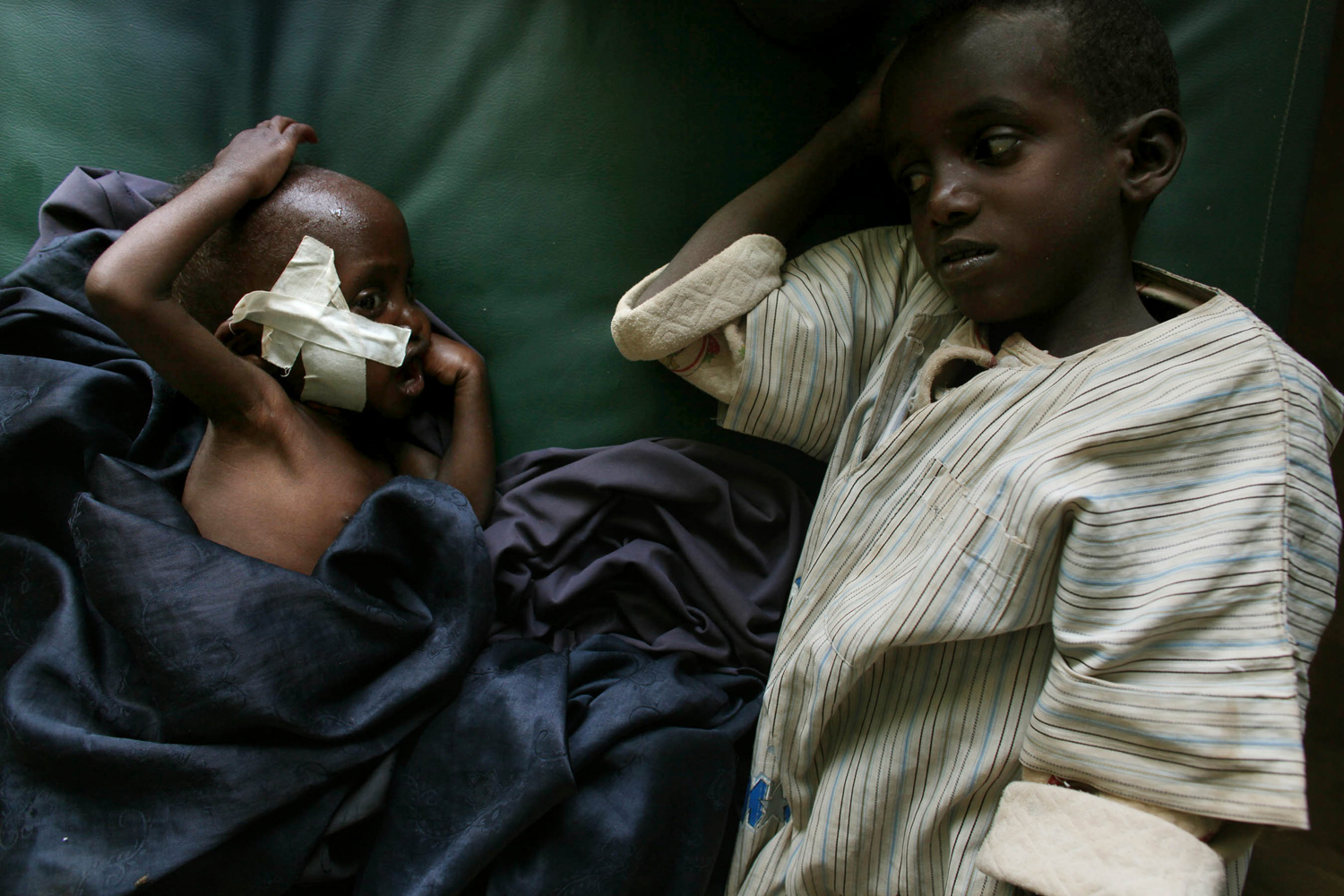 A young boy watches over his malnourished brother in a medical clinic run by Doctors Without Borders.