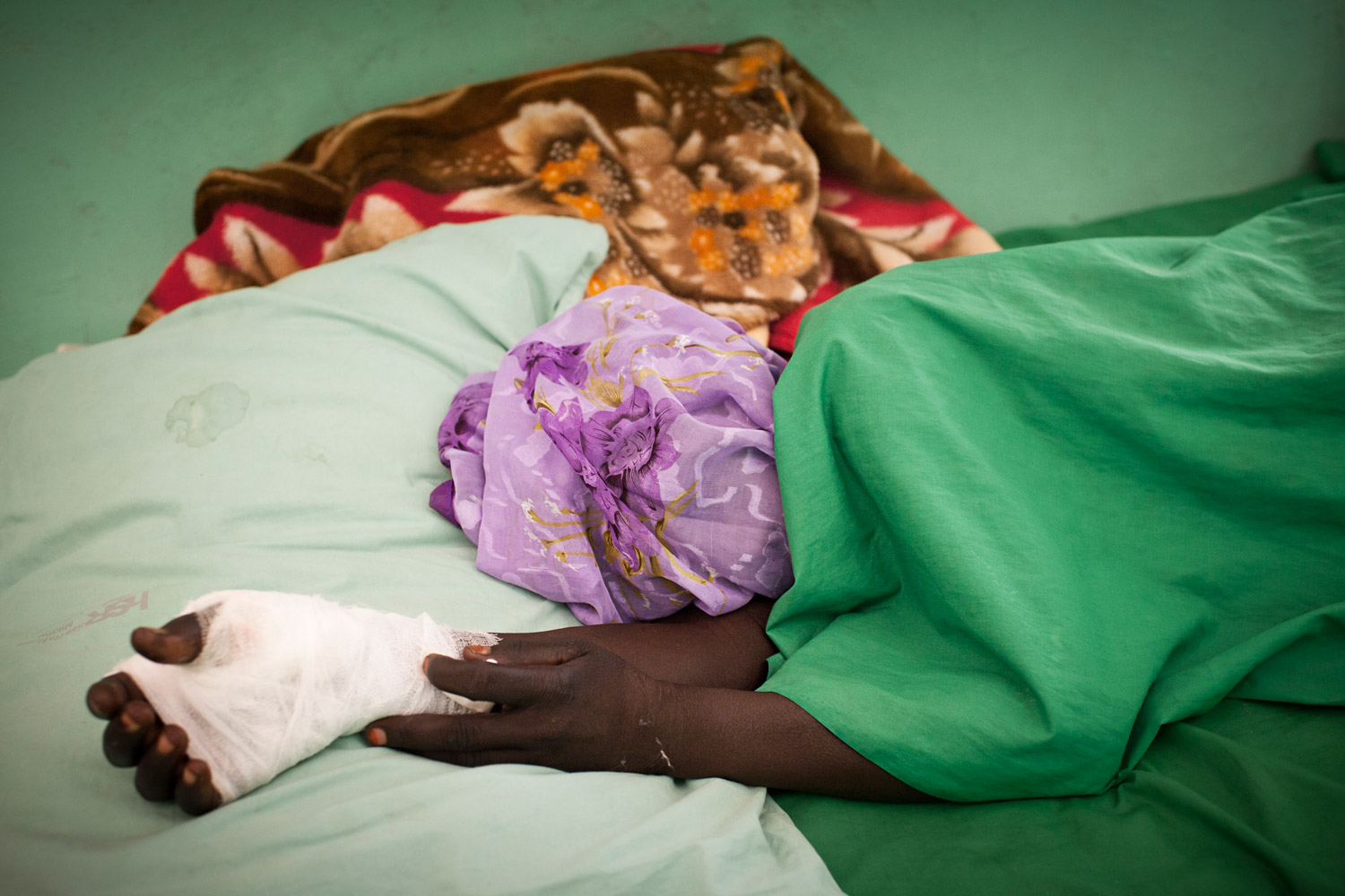 A civilian wounded after her village was bombed by northern Sudanese aircraft rests inside a hospital in the Nuba Mountains, July 2, 2011.