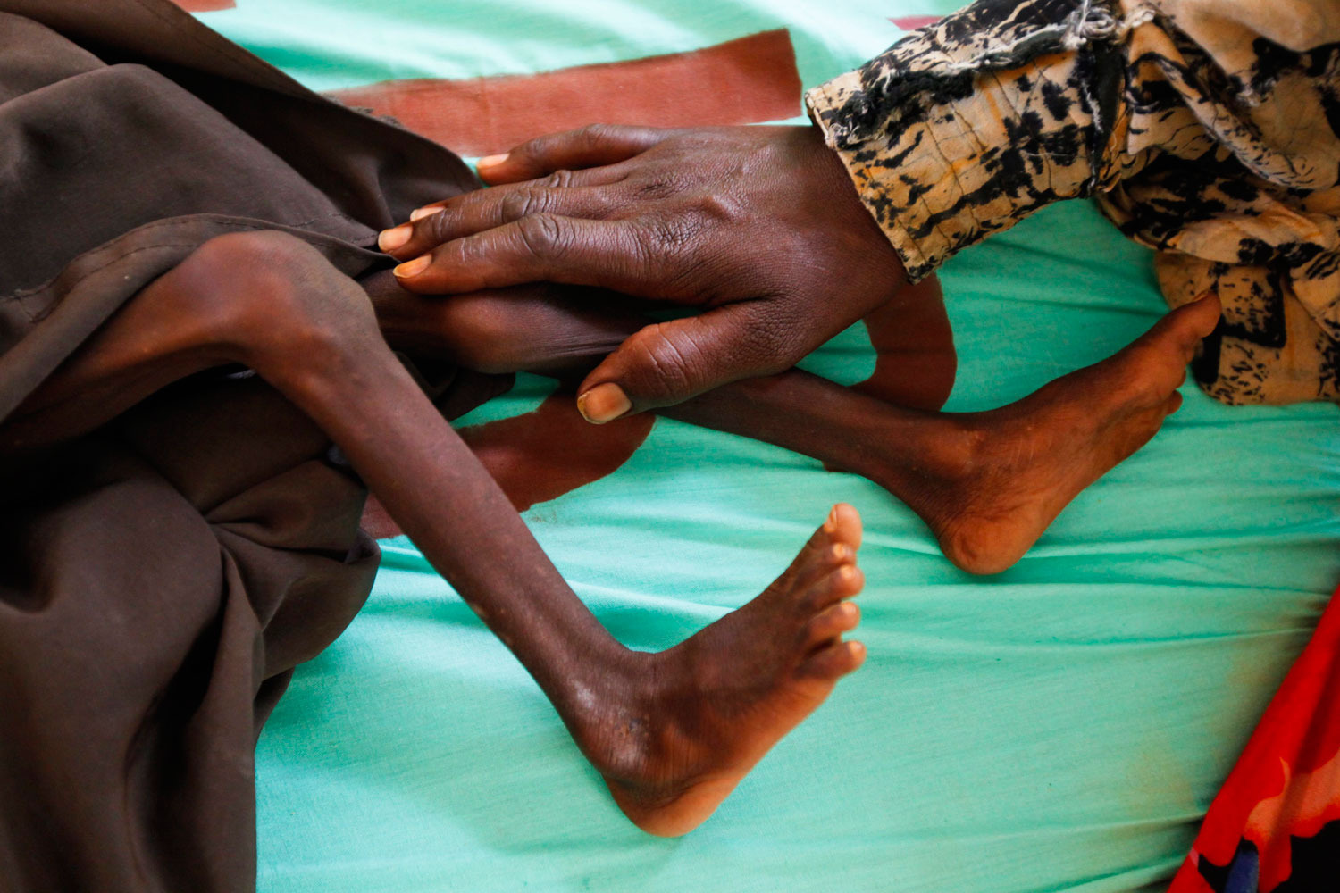 August 2, 2011. A mother of two-year-old severely malnourished Somali refugee boy Fariyo Yusuf puts her hand on her son's leg at a hospital run by GIZ, Deutsche Gesellschaft fuer Internationale Zusammenarbeit, at the Ifo camp, one of three camps that make up sprawling Dadaab refugee camp, in Dadaab, northeastern Kenya.