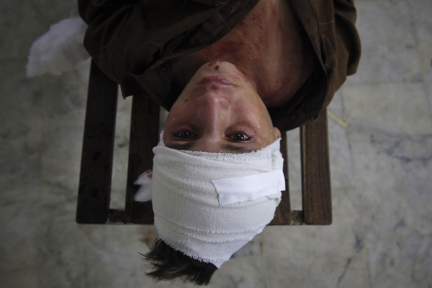 September 13, 2011. A tear runs down a boy's face as he lies on a bench after being treated for his injuries at the Lady Reading Hospital in Peshawar. Gunmen opened fire on a school bus in the Pakistani city of Peshawar, killing at least three children and the driver. 15 children were wounded.