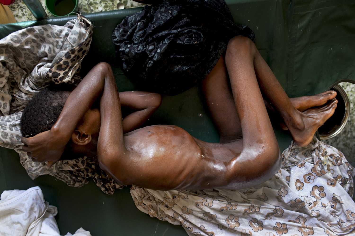 July 27, 2011. A malnourished child in a hospital in Mogadishu, Somalia. The United Nations declared famine in two areas of the nation in July.