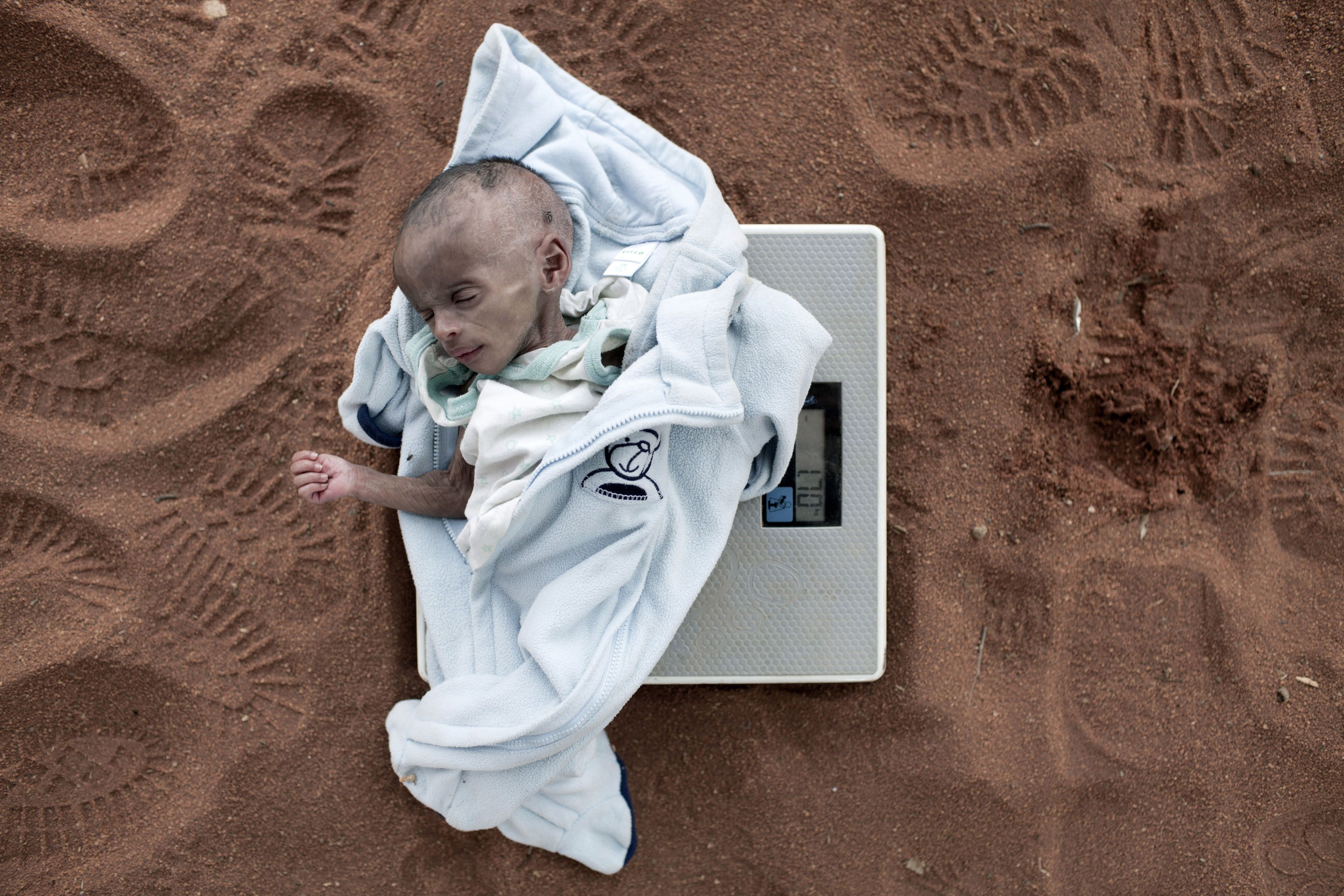 July 4, 2011. Umi Adan Olow, 3 months old, is weighed by Daniel Wanyoike, a community therapeutic nurse for Save the Children in Mathahalibah, Kenya.