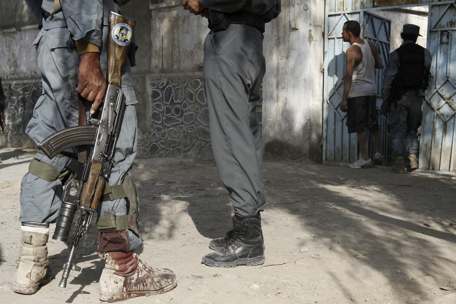 October 31, 2011. Blood is seen on the leg of an Afghan policeman after a suicide bomb attack near a building used by the Office of the United Nations High Commissioner for Refugees (UNHCR) in Kandahar.