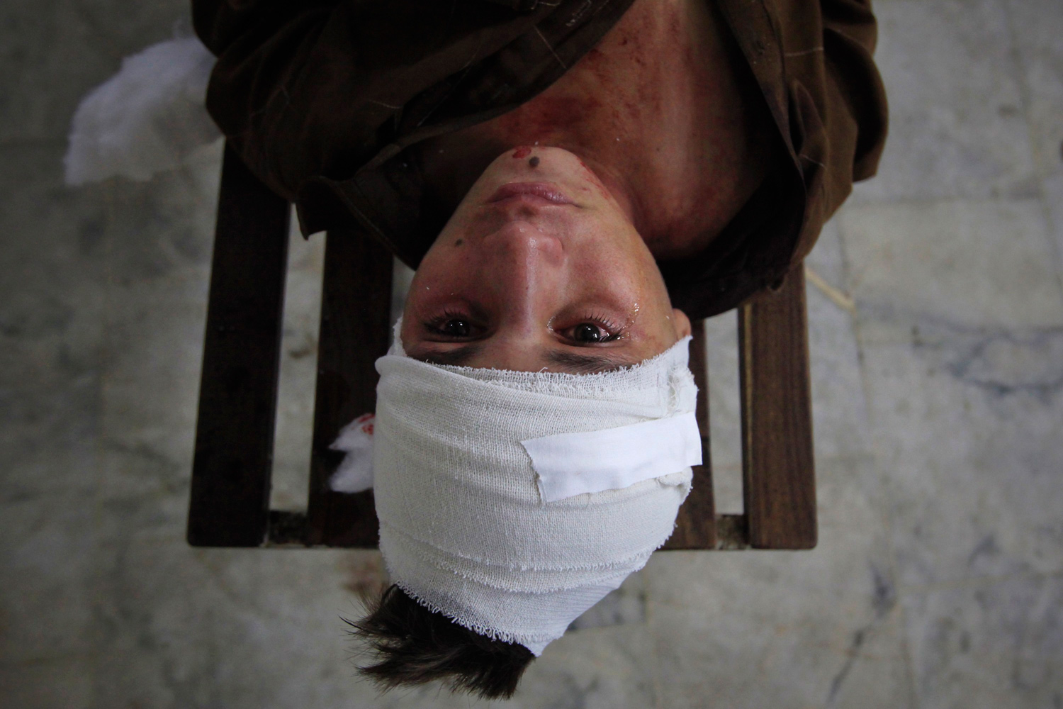 September 13, 2011. A tear runs down a boy's face as he lies on a bench after being treated for his injuries at the Lady Reading Hospital in Peshawar, Pakistan.