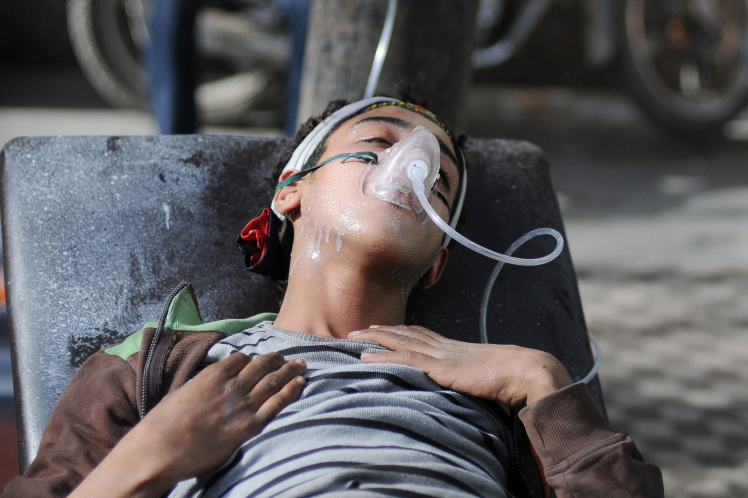 February 3, 2012. An Egyptian protester injured after clashes with the police near the interior ministry in downtown Cairo.