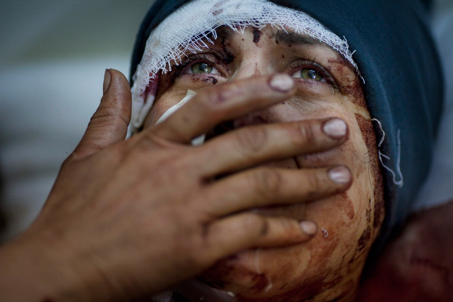 March 10, 2012. Aida cries as she recovers from severe injuries after the Syrian Army shelled her house in Idlib. Aida's husband and two children were killed after their home was shelled.