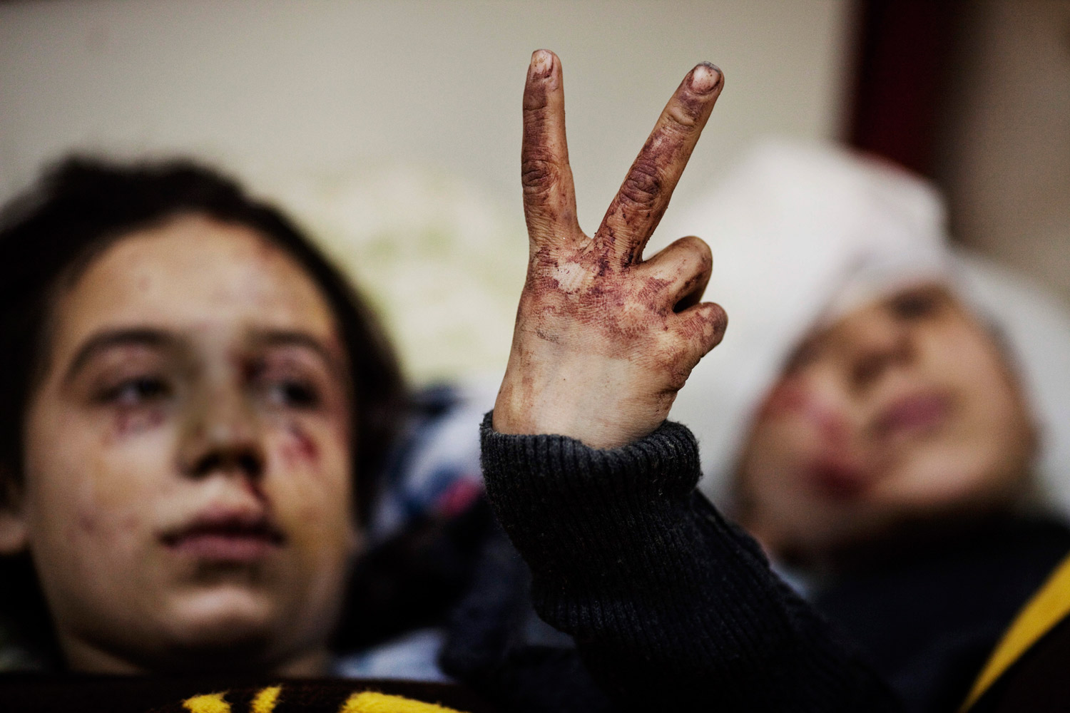 March 10, 2012. Hana, 12, flashes the victory sign next to her sister Eva, 13, as they recover from severe injuries after the Syrian Army shelled their house in Idlib, north Syria. Their father and two siblings were killed after their home was shelled.