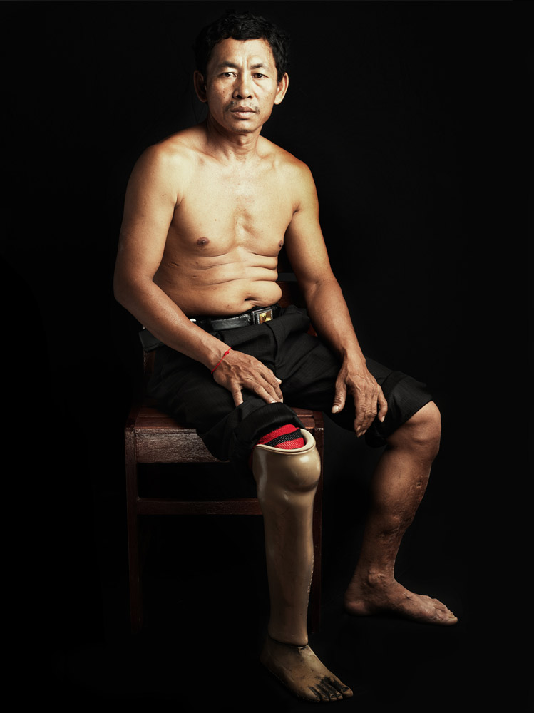 Sok Borey was photographed in Siem Reap at the Meta Karuna Center, a facility for the rehabilitation of land mine survivors.