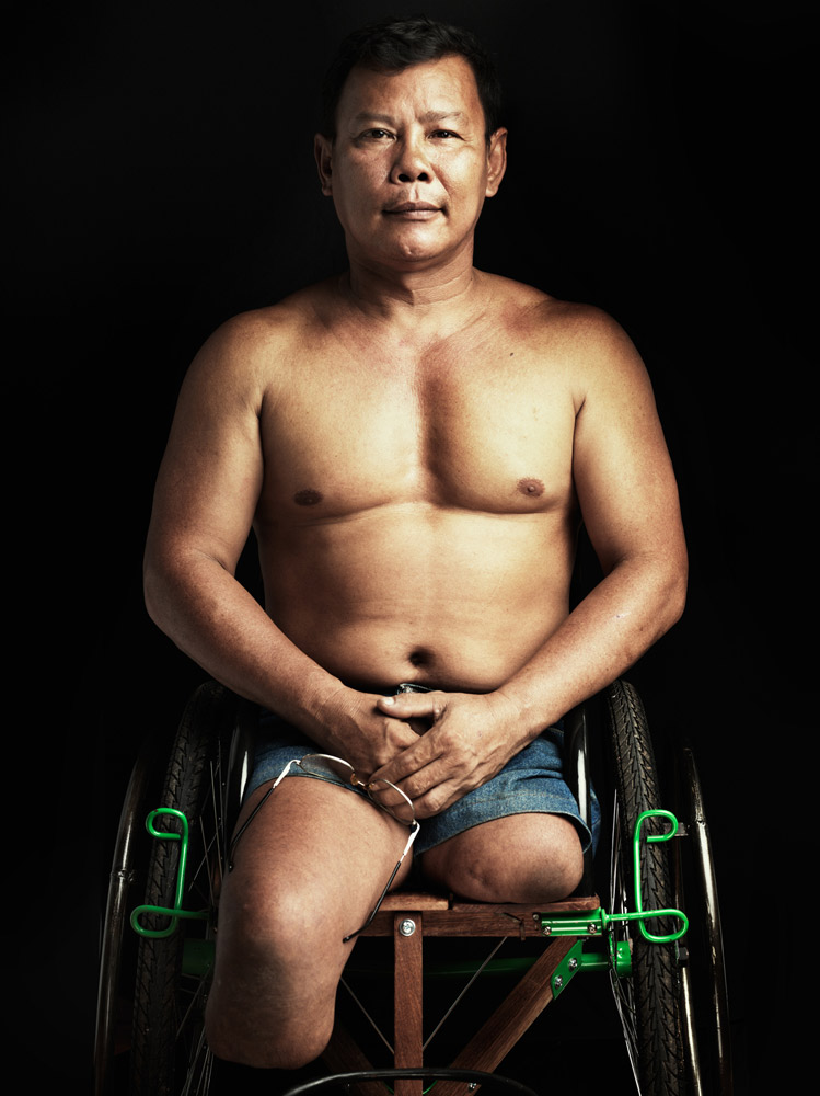 Tun Channareth is a Nobel Peace prize co-recipient. He is an important advocate of the ban on land mines, and a land mine accident survivor. He is now an ambassador for the international campaign to ban land mines and oversees income generating projects for the disabled in Cambodia.