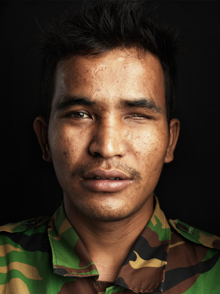 En Poy was injured in a bombie explosion. He lost his right arm in the accident as well as the sight in his left eye.