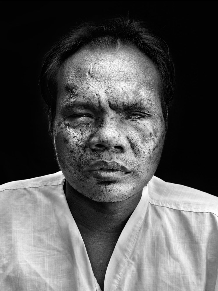 Barang Kopie lost his sight and had facial injuries after a land mine accident when he was working on his land in Battambang province.