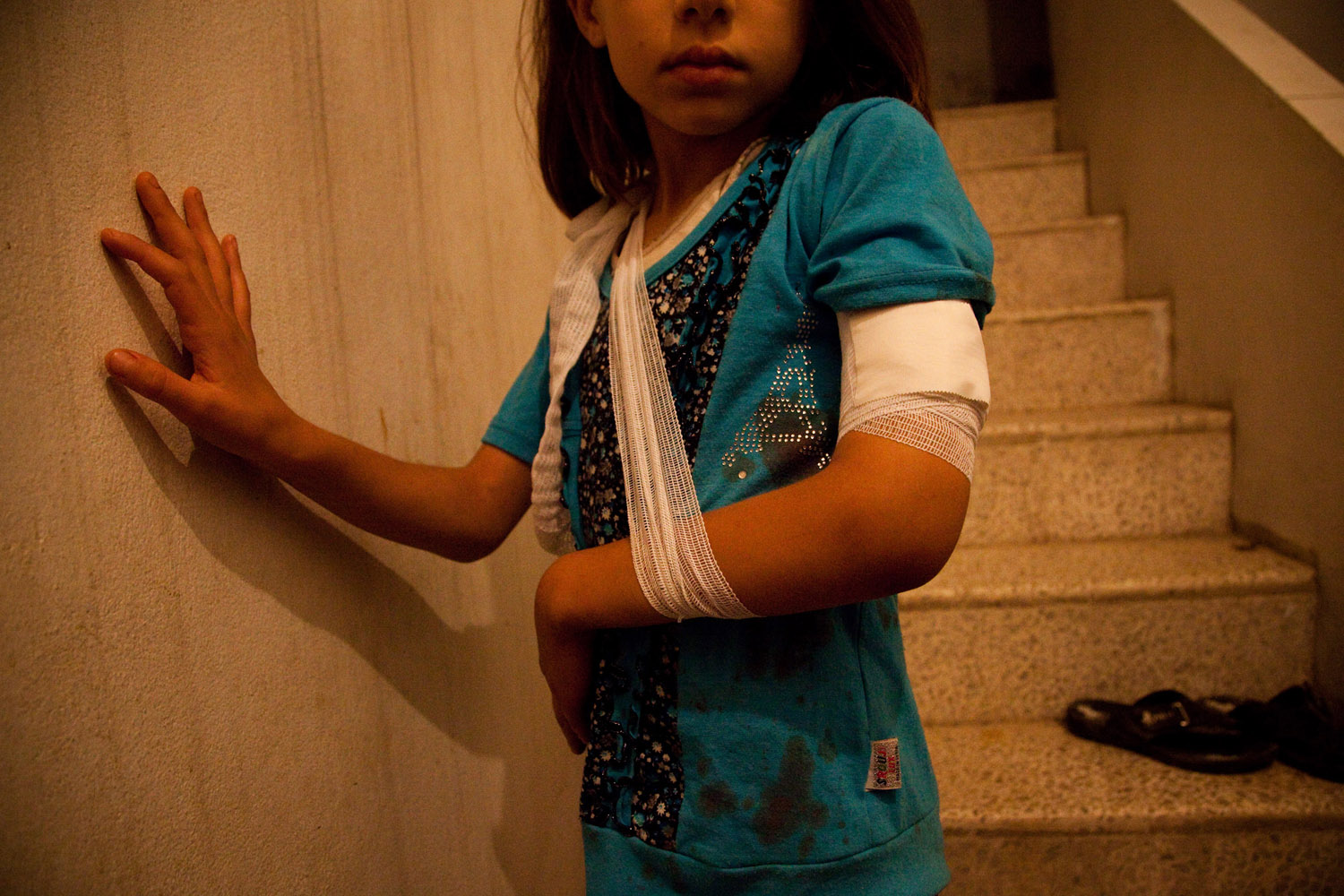 Maais, 10, was sitting on the stairs of her house when a mortar fired by the Syrian Army landed nearby, spraying shrapnel into the home and injuring her on the night of June 9, 2012 in the city of Maarat Al Noman.