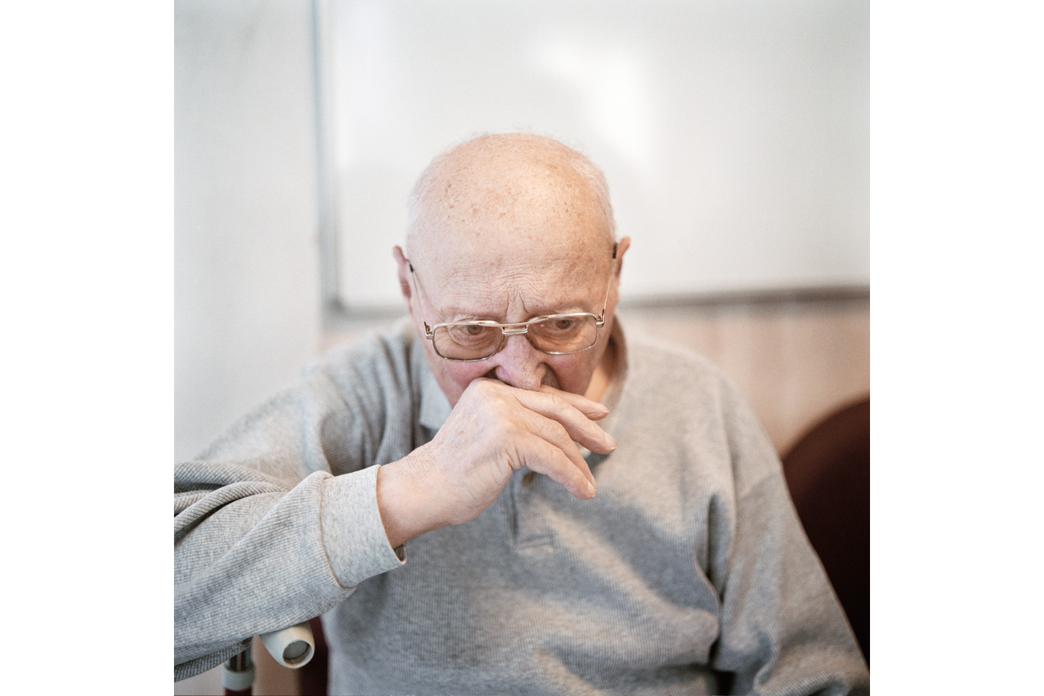 A resident in the Alzheimer's ward expressing confusion and anxiety. A person can live with Alzheimer's disease for about 10 years while a constant degradation of memory and an increasing loss of contact to the outside world can be observed