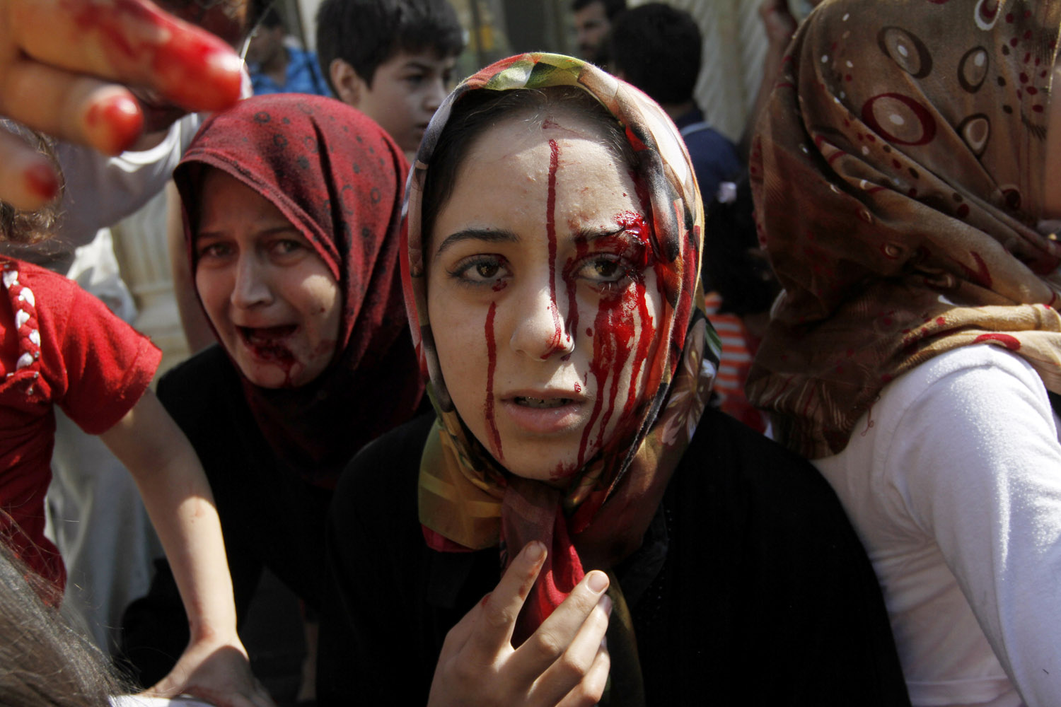 Aug. 15, 2012. Injured Syrian women arrive at a field hospital after an air strike hit their homes in the town of Azaz on the outskirts of Aleppo, Syria.