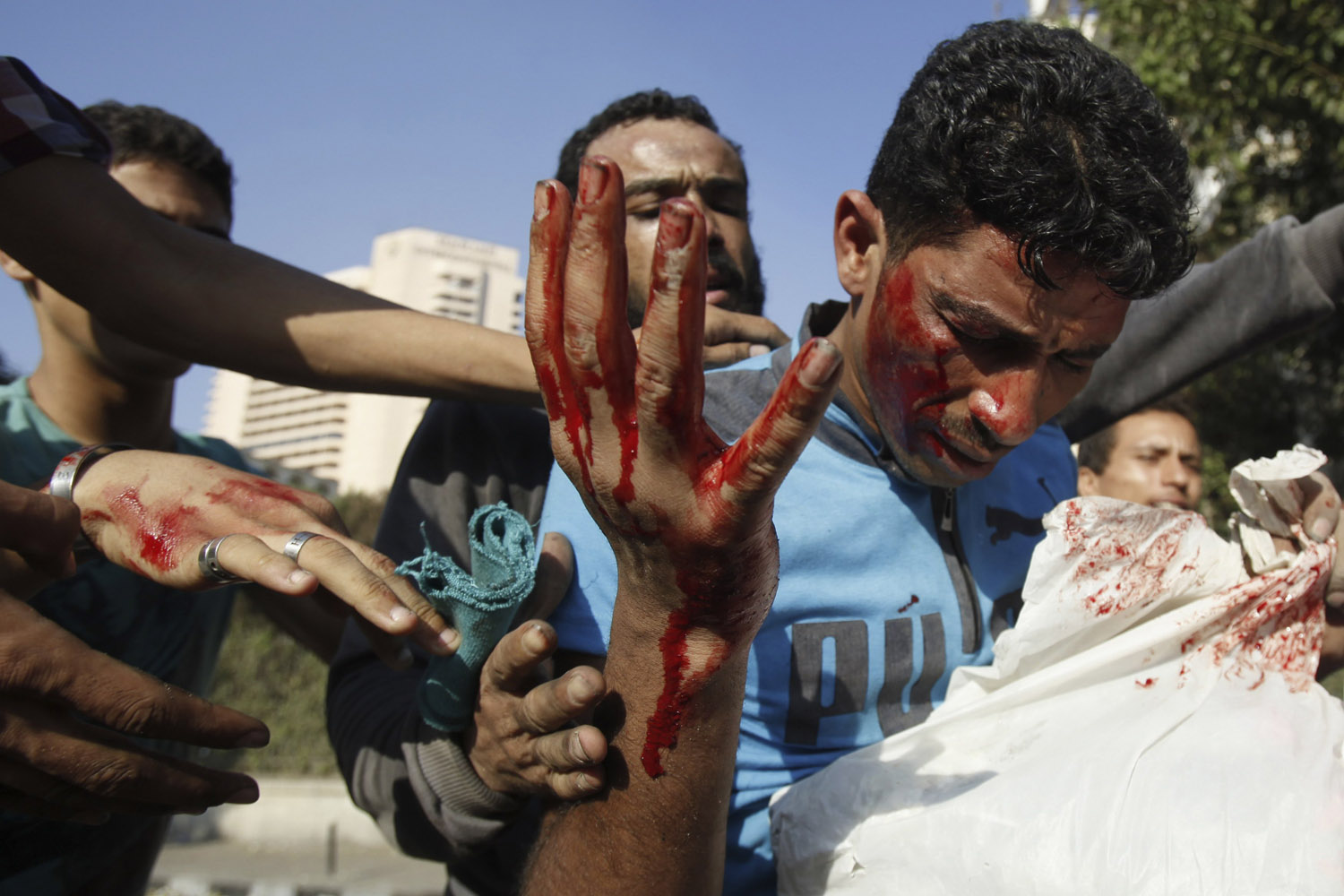 Sept. 14, 2012. Protesters help an injured man, who was hurt during clashes, along a road leading to the U.S. embassy, near Tahrir Square in Cairo.
