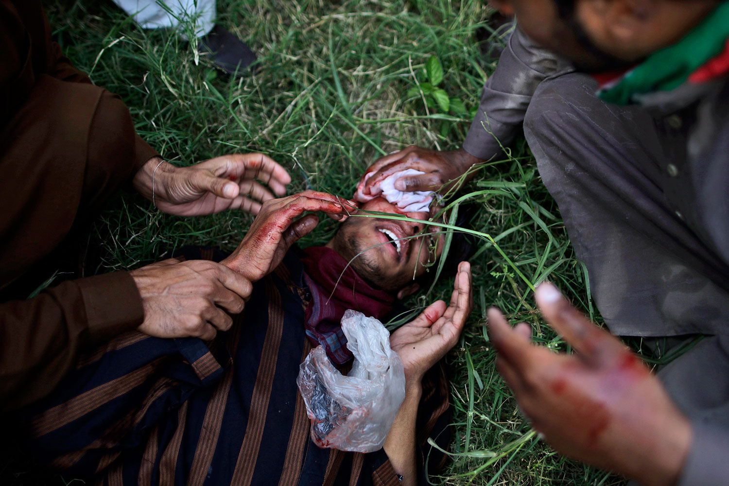Sept. 21, 2012. A Pakistani protester, wounded in clashes with riot police, is helped by colleagues as they tried to approach the U.S. embassy, during a demonstrations against an anti-Islam film in Islamabad.
