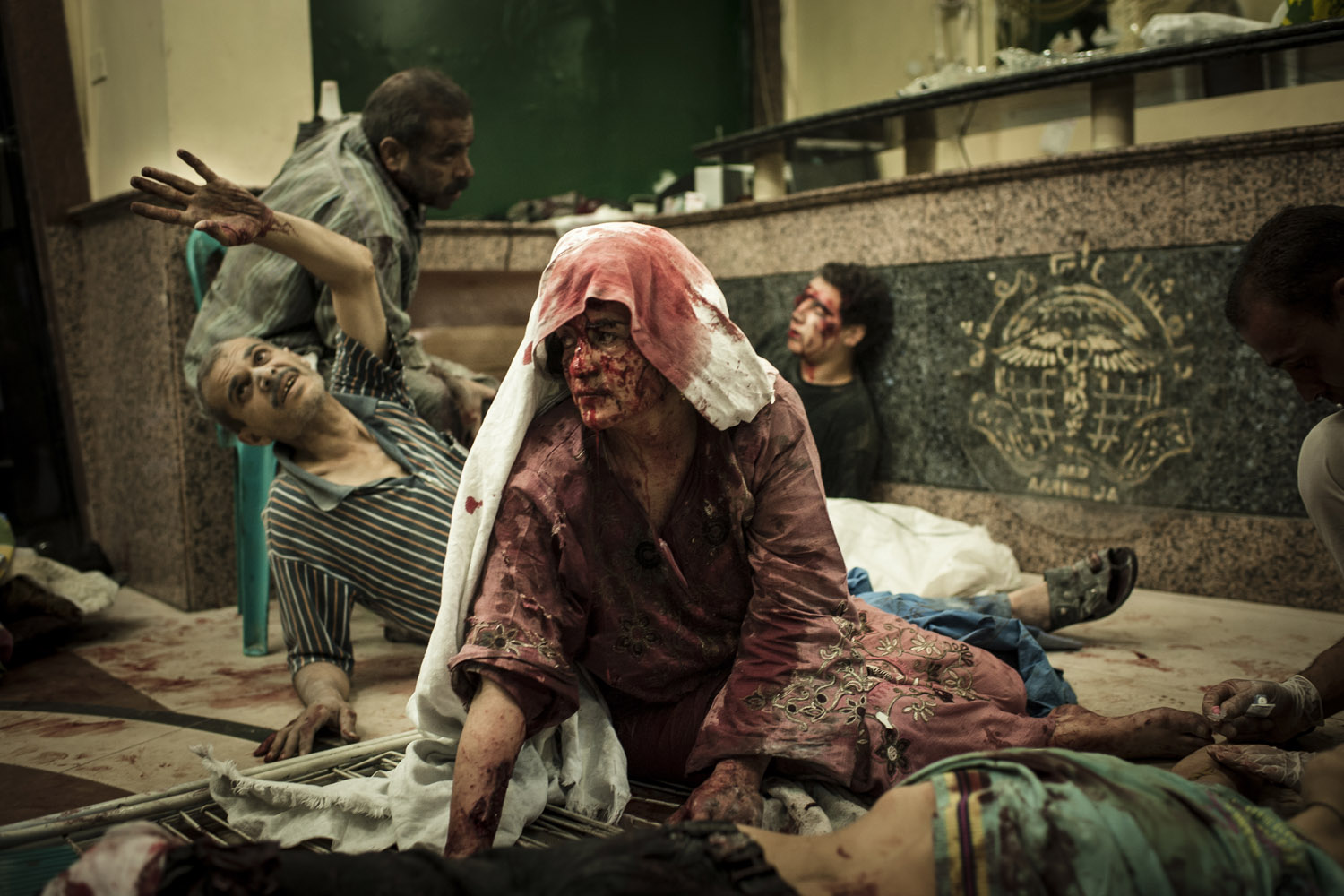 Edouard Elias                               Wounded civilians are seen in a field hospital in Aleppo after an air strike destroyed a bakery, killing 20 and injuring 80.                                I shot this on the night of Aug. 21. A bakery had been bombed, and cars carried the wounded civilians to Dar al-Shifa Hospital. It was a difficult moment, working among the wounded and dead. It was my first war, and I had the responsibility to make pictures at this moment, even if I wouldn't go inside the hospital.                                Looking back at the picture, I remember how I felt sitting outside the hospital with my emotions, near tears. When fighters were wounded, I understood — it's war. But civilian boys, children, women ... it wasn't the same feeling.