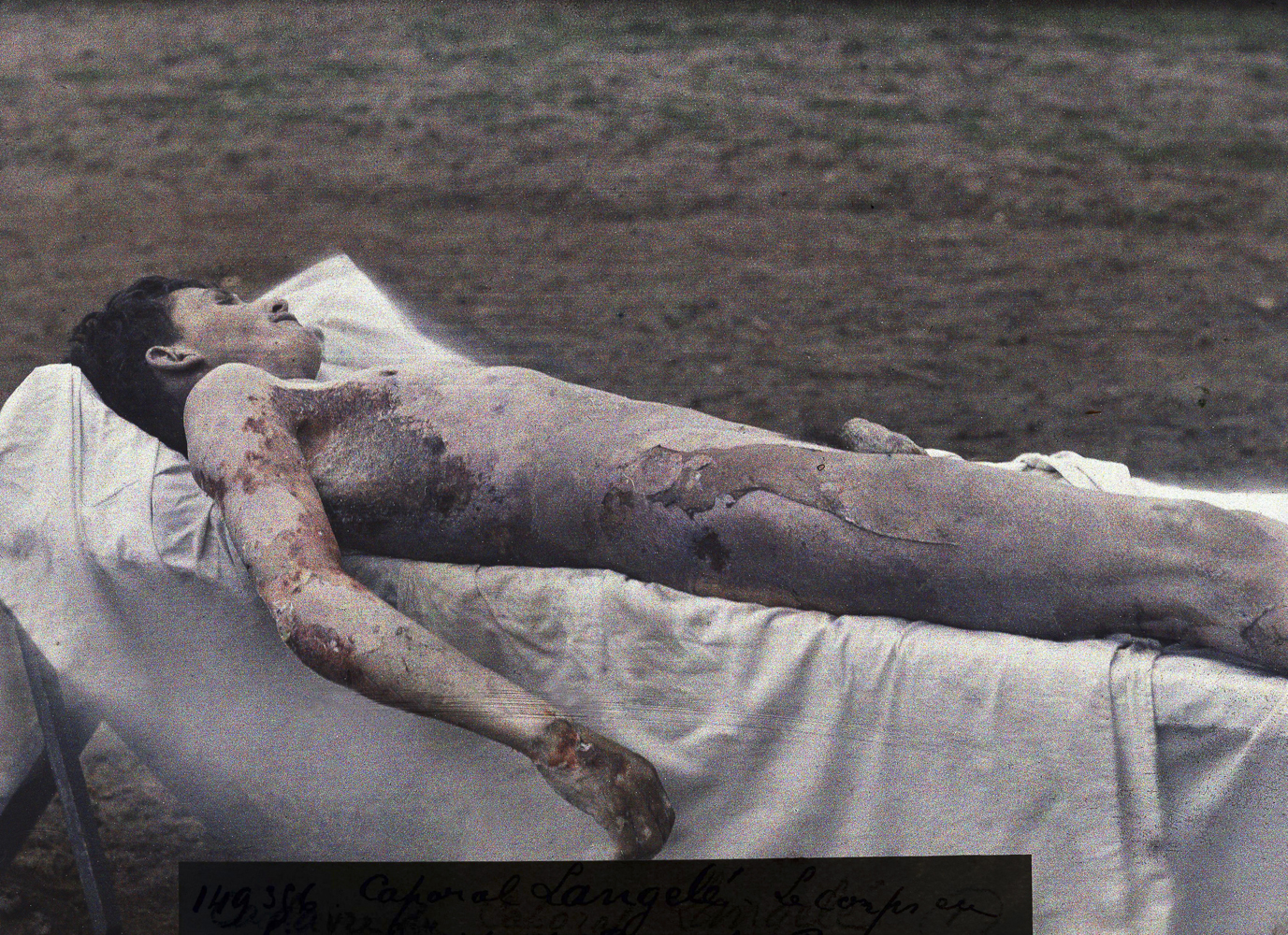 The corpse of a French soldier of the 99th infantry regiment, who was poisoned during a German gas attack on March 23, 1918 and died eight days later of pneumonia.