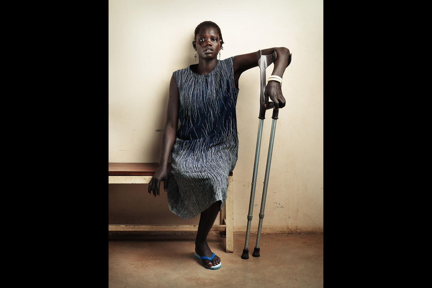 Nyaguna Dak lost her right leg in a mine accident and is being treated at ICRC in Juba, South Sudan.