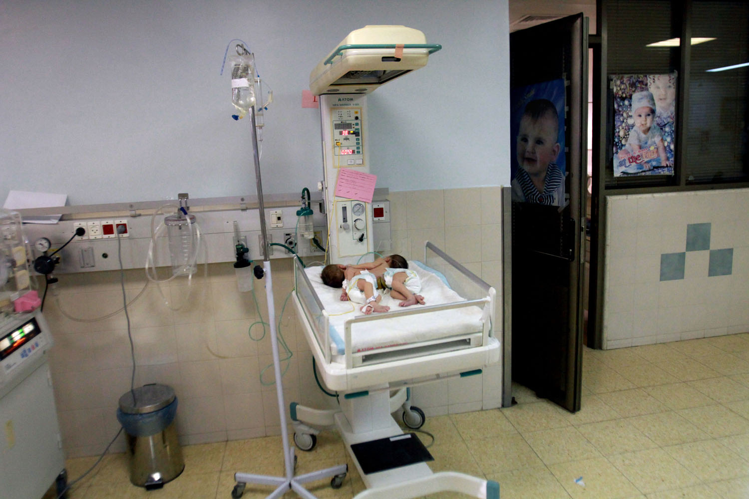 June 3, 2013. Conjoined Palestinian female twins receive treatment at a hospital in the West Bank city of Hebron.