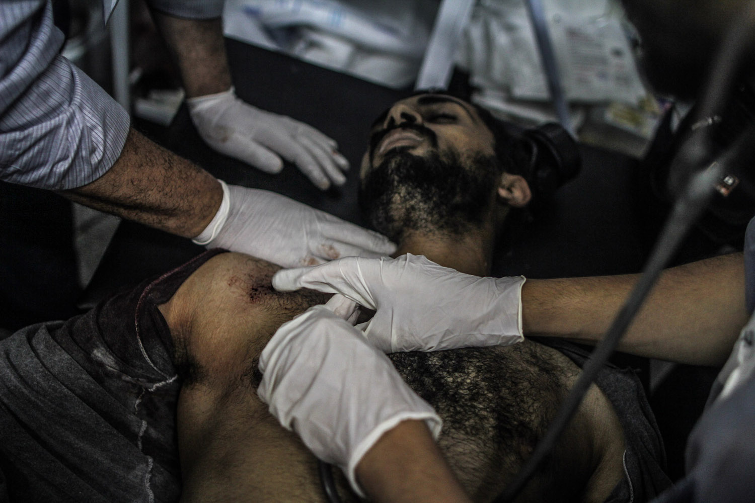 A Morsi supporter, shot in the chest, is treated by medics at a makeshift hospital near Rabaa.