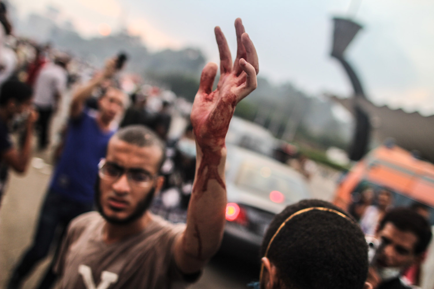 A Morsi supporter transporting injured protesters shows his bloodied hand.