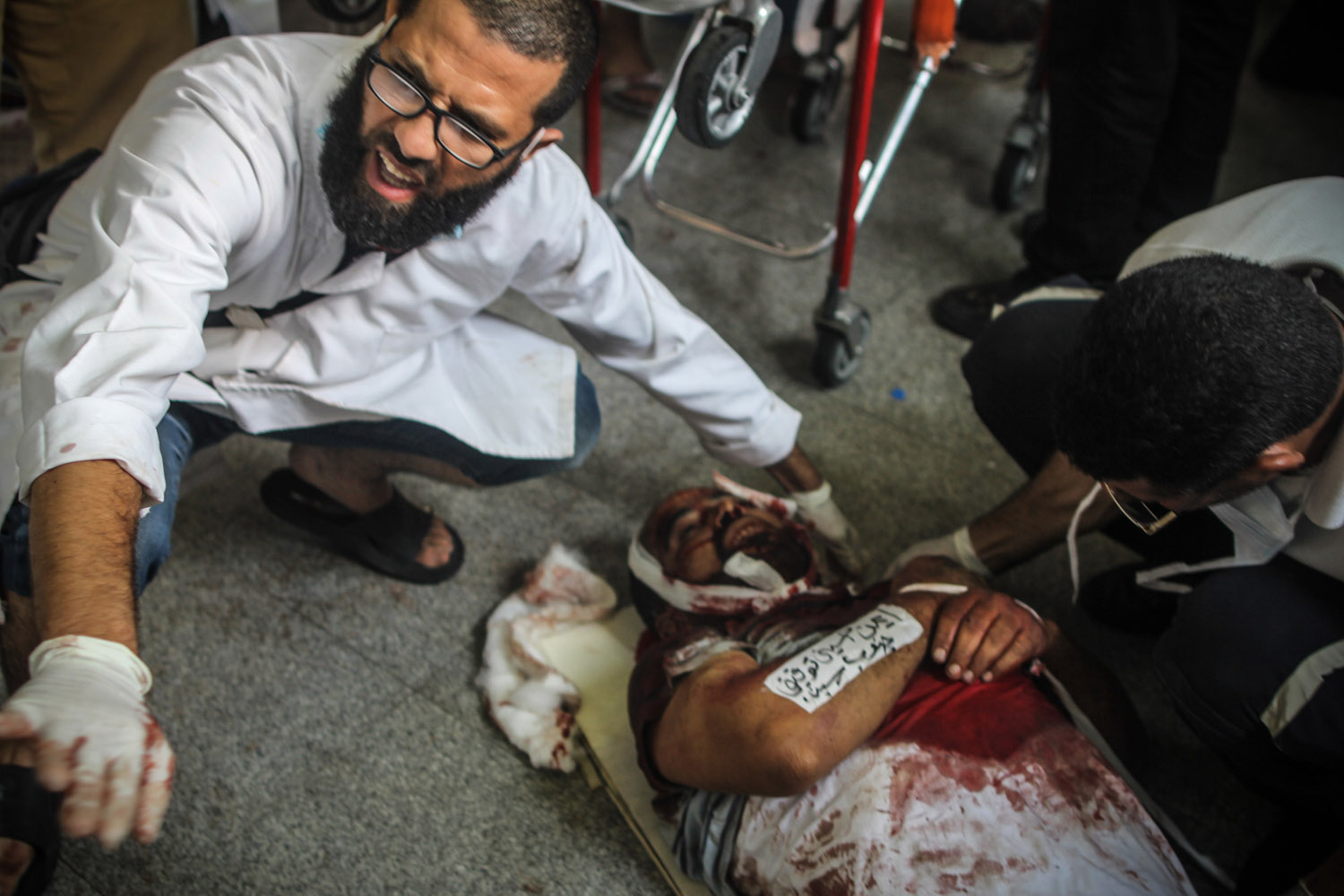 A doctor reacts as a victim arrives at the makeshift hospital.