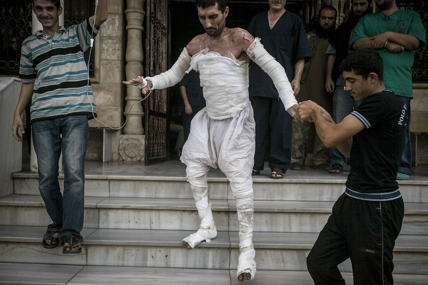 Sept. 22, 2013. A Syrian man with more than half his body burnt from an air strike leaves a field hospital to go back home at a village turned into a battlefield with government forces in Idlib province, northern Syria.