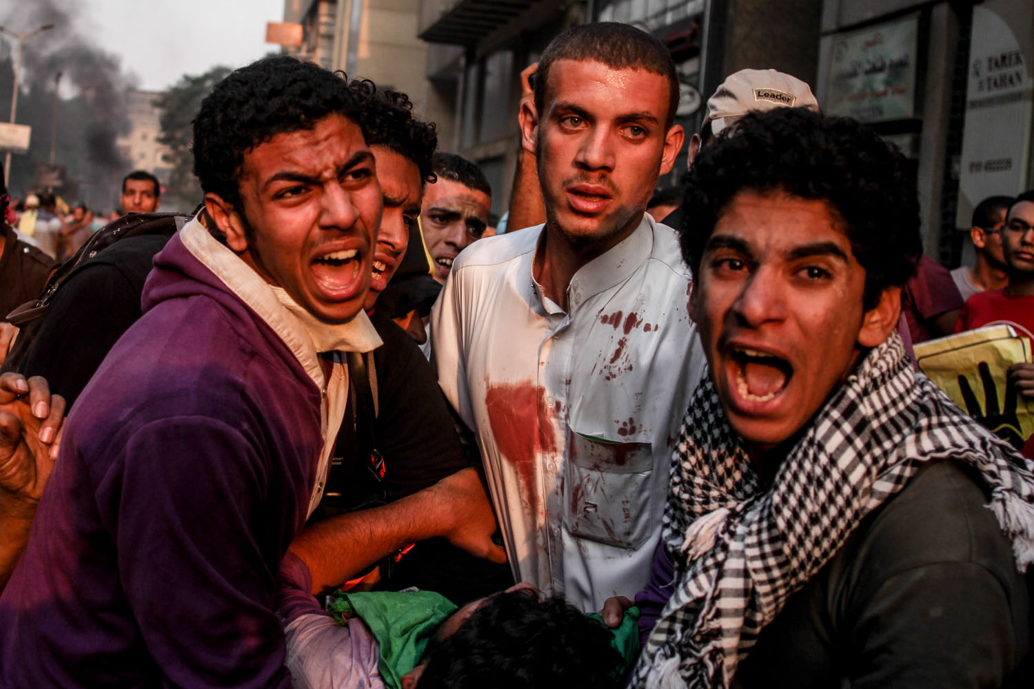Oct. 6, 2013. An injured Egyptian supporter of ousted President Morsi is assisted during clashes on the day the country celebrates the 40th anniversary of the 1973 Arab-Israeli war, in the Dokki area of Giza, near Cairo.