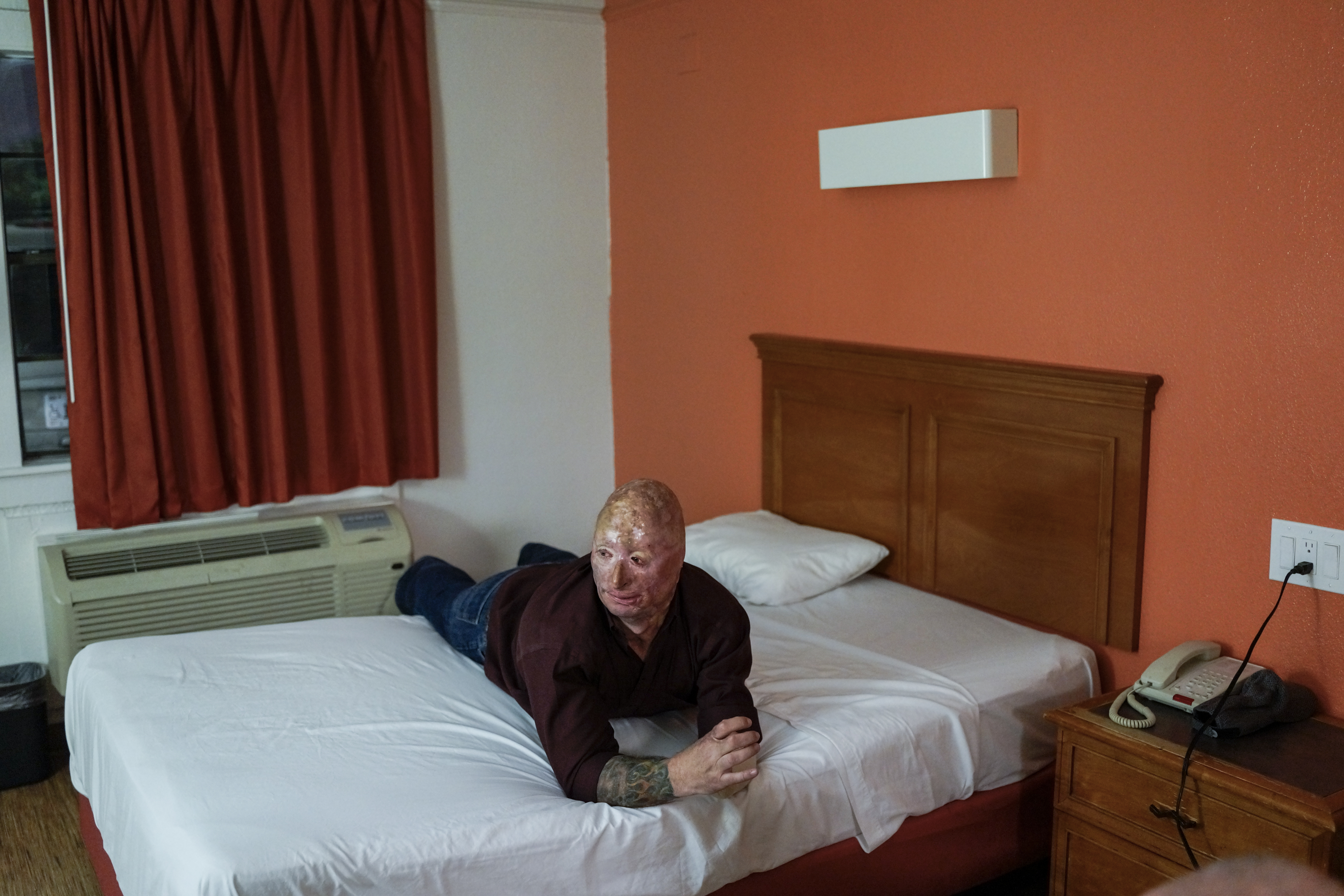 Bobby Henline, 41, is a veteran of four tours to Iraq and the sole survivor of an IED blast that killed the other four soldiers in his humvee in Iraq in 2007. Henline is now a standup comedian launching a new career with a routine built around his injuries, seen here in his Motel 6 room after performing. Dallas, Texas, 2013.