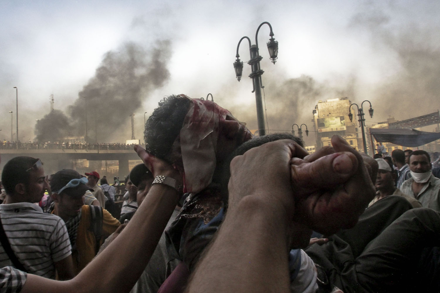 Aug. 16, 2013. Fellow demonstrators carry the lifeless body of a man fatally wounded during clashes between pro-Muslim Brotherhood demonstrators and Egyptian security forces in the Ramses district of Cairo.
