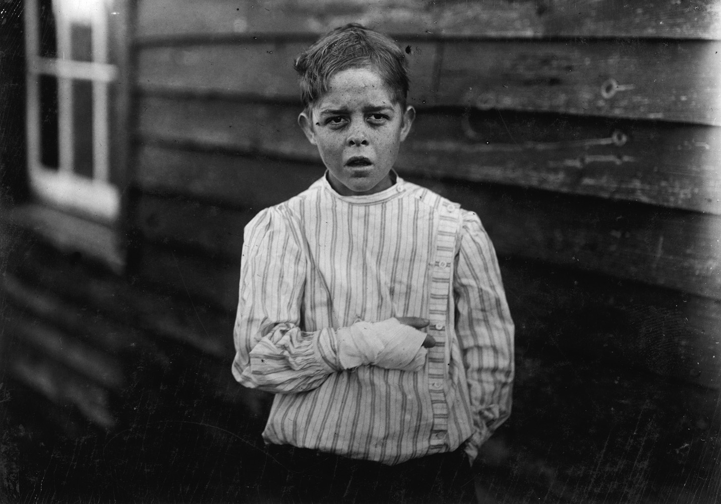 "Giles Newsom, cotton mill worker, 12 years old, Bessemer City, North Carolina, 1912. According to Lewis Hine, ""A piece of the machine fell on his foot mashing his toe. This caused him to fall onto a spinning machine and his hand went into unprotected gearing, crushing and tearing out two fingers. He told the Attorney he was 11 years old when it happened. His father, (R.L. Newsom) tried to compromise with the Company when he found the boy would receive the money and not the parents. The mother tried to blame the boys for getting jobs on their own hook, but she let them work several months. The aunt said  Now he's jes got to where he could be of some help to his ma an' then this happens and he can't never work no more like he oughter.  He died at the age of 18. He was buried in an unmarked grave, and his name was badly misspelled on his death certificate."