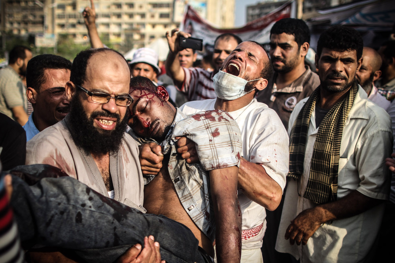 July 27, 2013. Morsi supporters carry a man shot in the head outside the makeshift hospital in Rabaa Square.