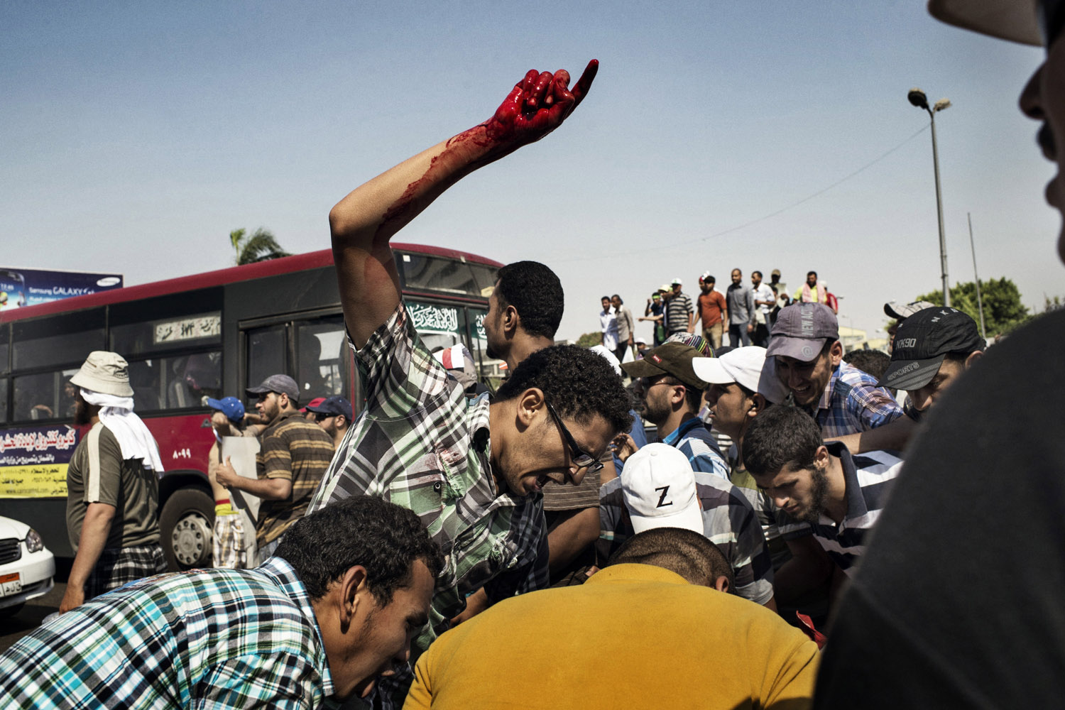 July 5, 2013. Backers of ousted President Mohamed Morsi helped an injured man near Republican Guard headquarters in Cairo.