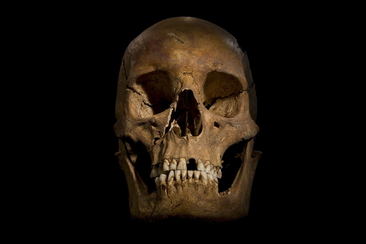 Undated. This photo provided by the University of Leicester and received in London on Feb. 4, 2013 shows the skull of Richard III.
