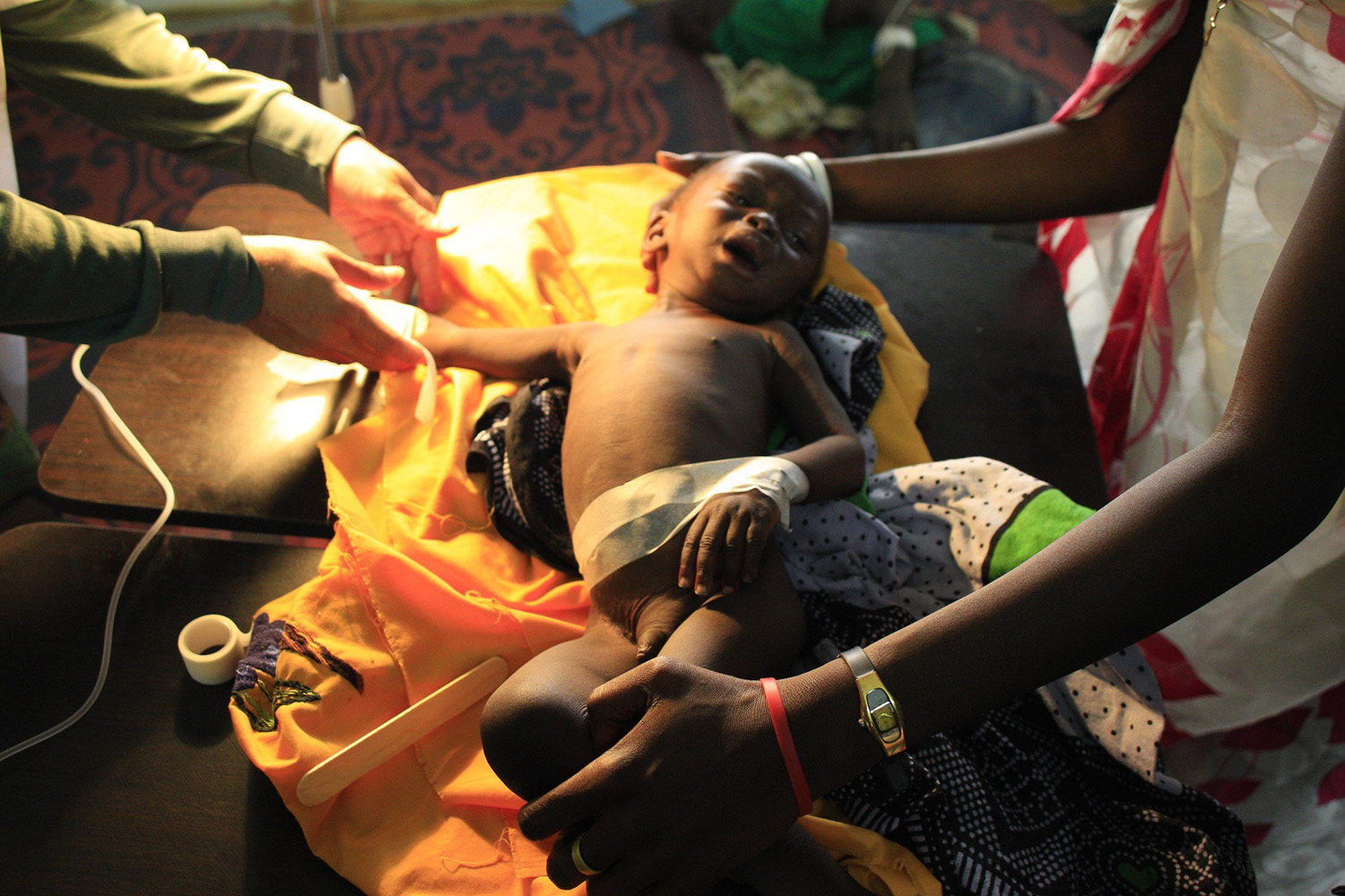 Jan. 7, 2014. Medical workers tend to a sick child from a displaced family at United Nations hospital at Tomping camp, where some 15,000 displaced people who fled their homes are sheltered by the UN near South Sudan's capital Juba.