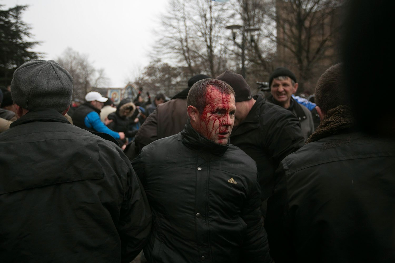 A Ukrainian man walks away after being injured in a stampede during clashes at rallies held by ethnic Russians and Crimean Tatars near the Crimean parliament building in Simferopol, Feb. 26, 2014.