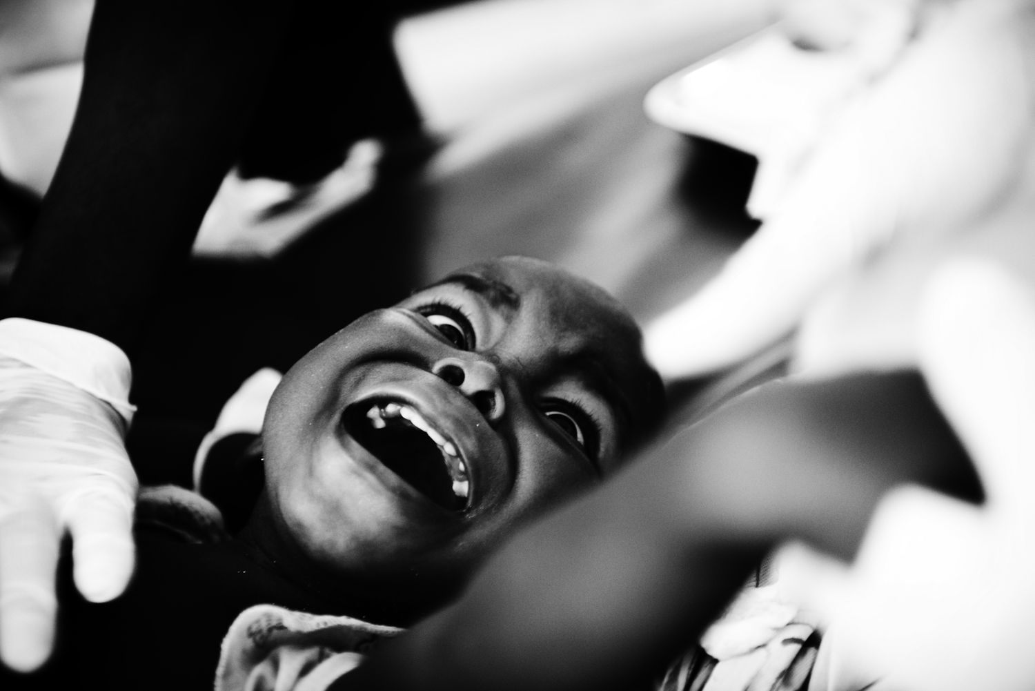 A child is treated at a medical center set up by Médecins Sans Frontières adjacent to M'Poko International Airport. At the time, dozens of people were being treated there for stray bullets or wounds from machetes. Feb. 2, 2014.