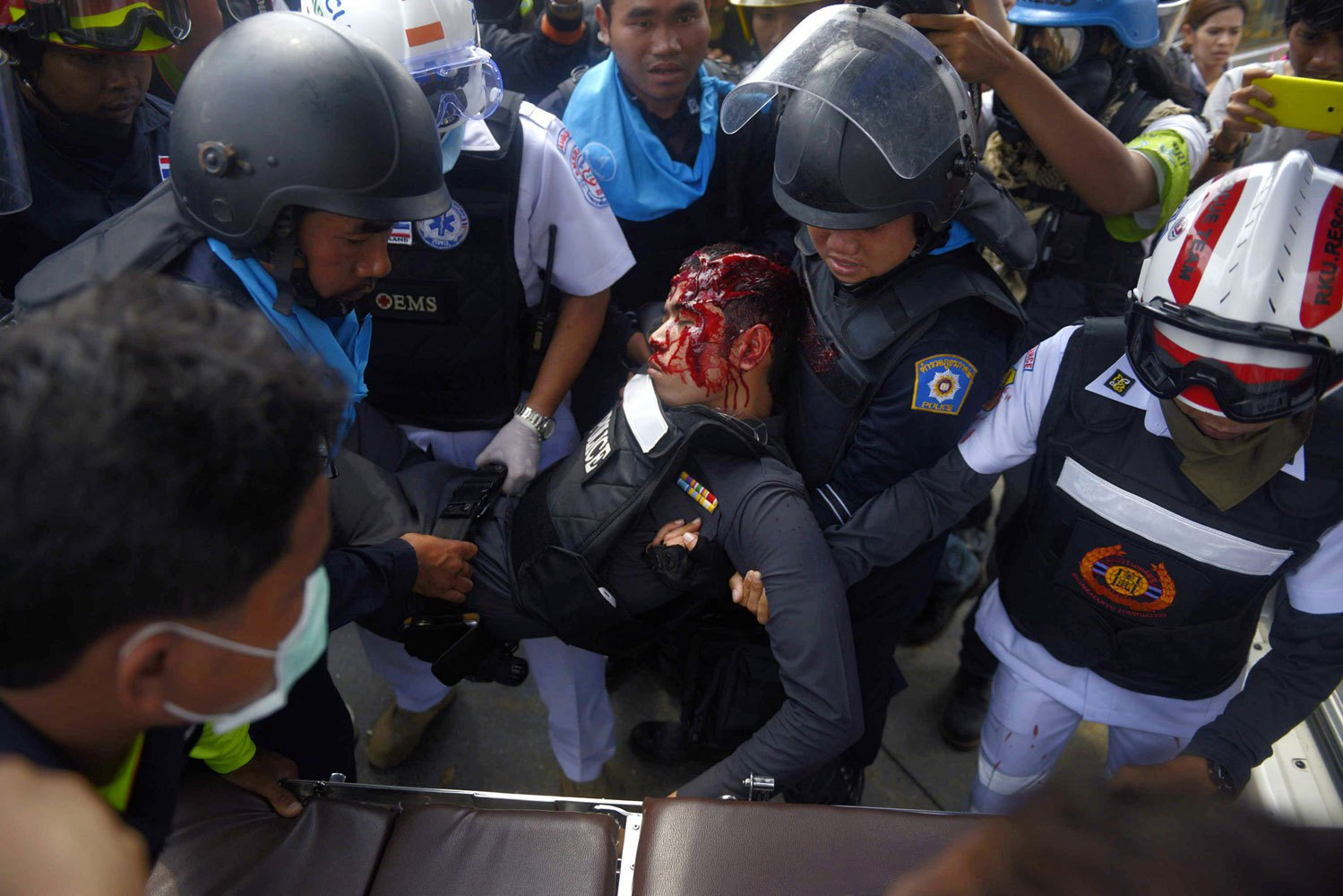 A Police officer is carried to an ambulance after he was shot in the head by sniper fire during a police operation to reclaim the protest site at Phan Fa Bridge in Bangkok, on Feb. 18, 2014.