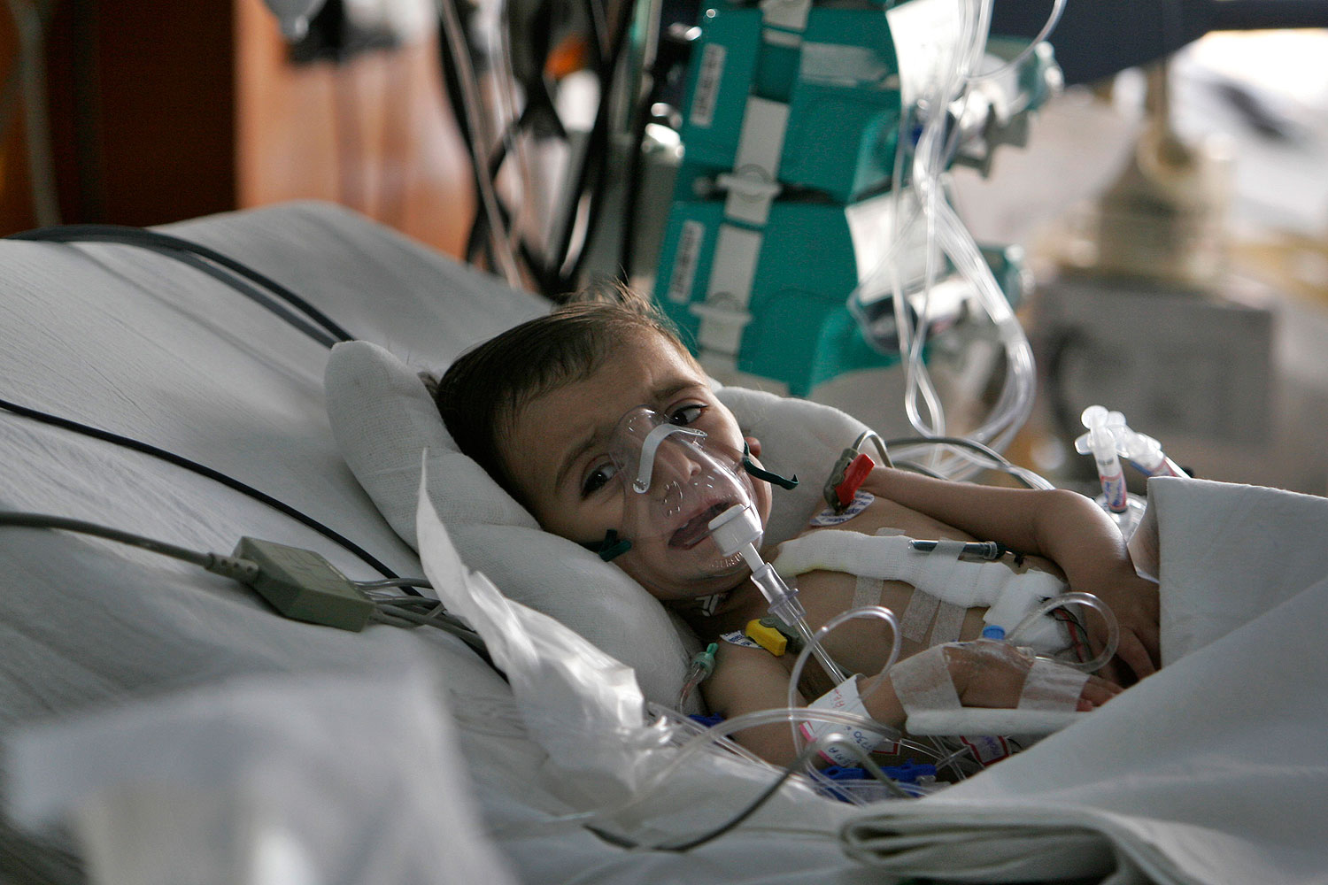 An Afghan child Leema, 17 months, recovers from heart surgery at Narayana Hrudayalaya hospital in Bangalore, India, in this file photo from 2008