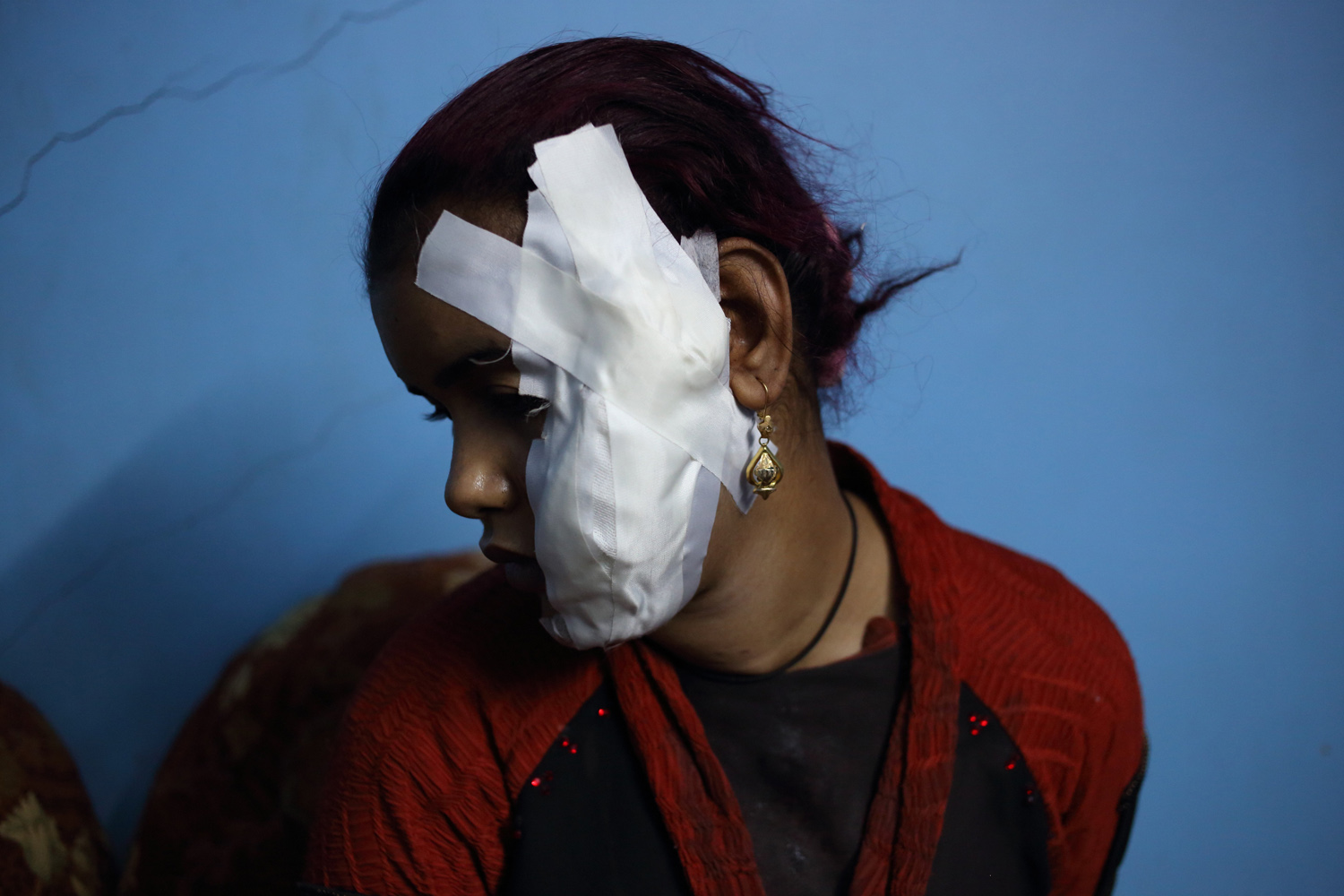 Apr. 6, 2014. Amira Arafa, who was injured Saturday during clashes in Aswan, recovers in a relative's house, as her own was damaged in fighting in the southern city of Aswan, Egypt.