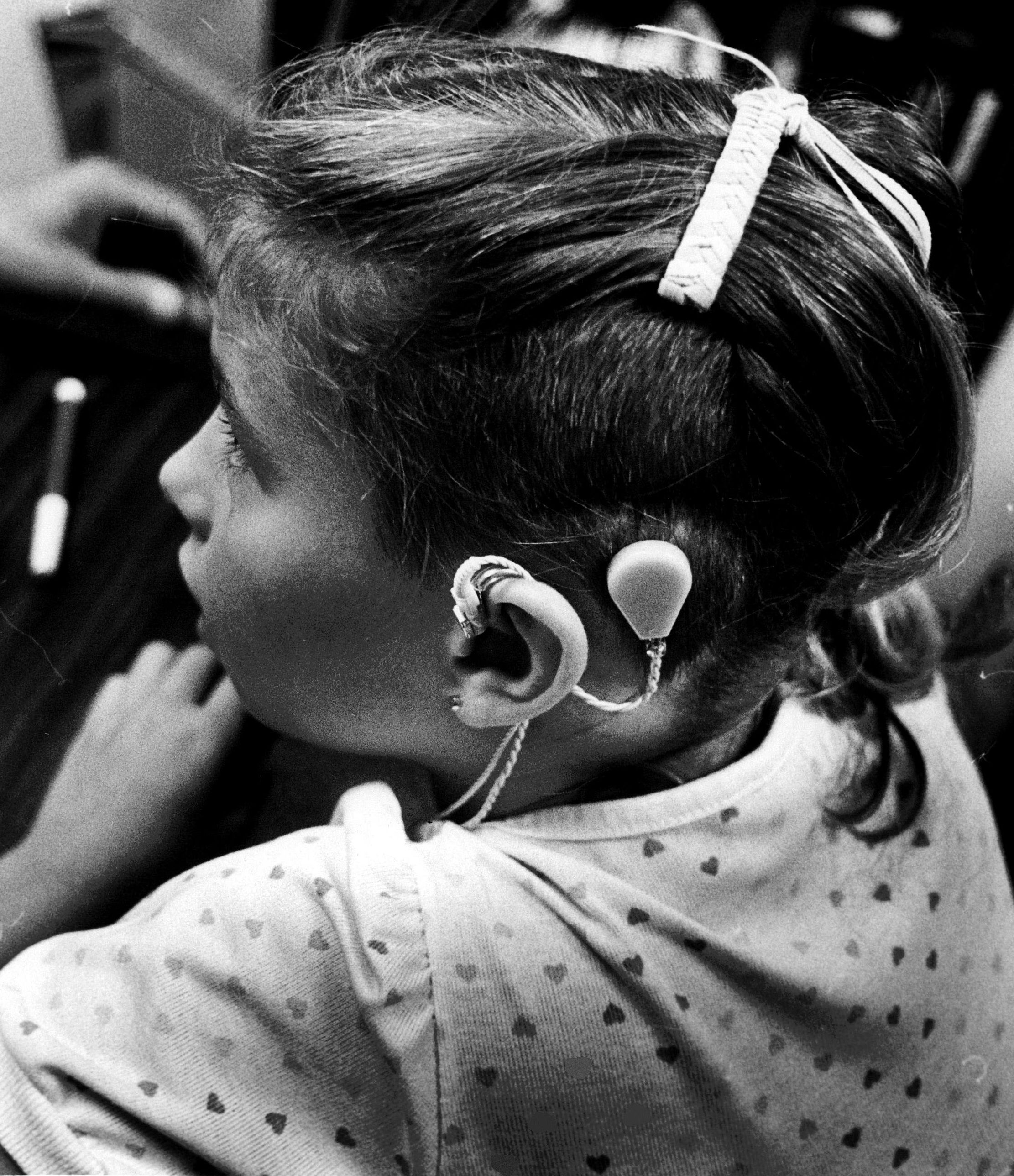 A child with an early cochlear implant on Aug. 24, 1984.
