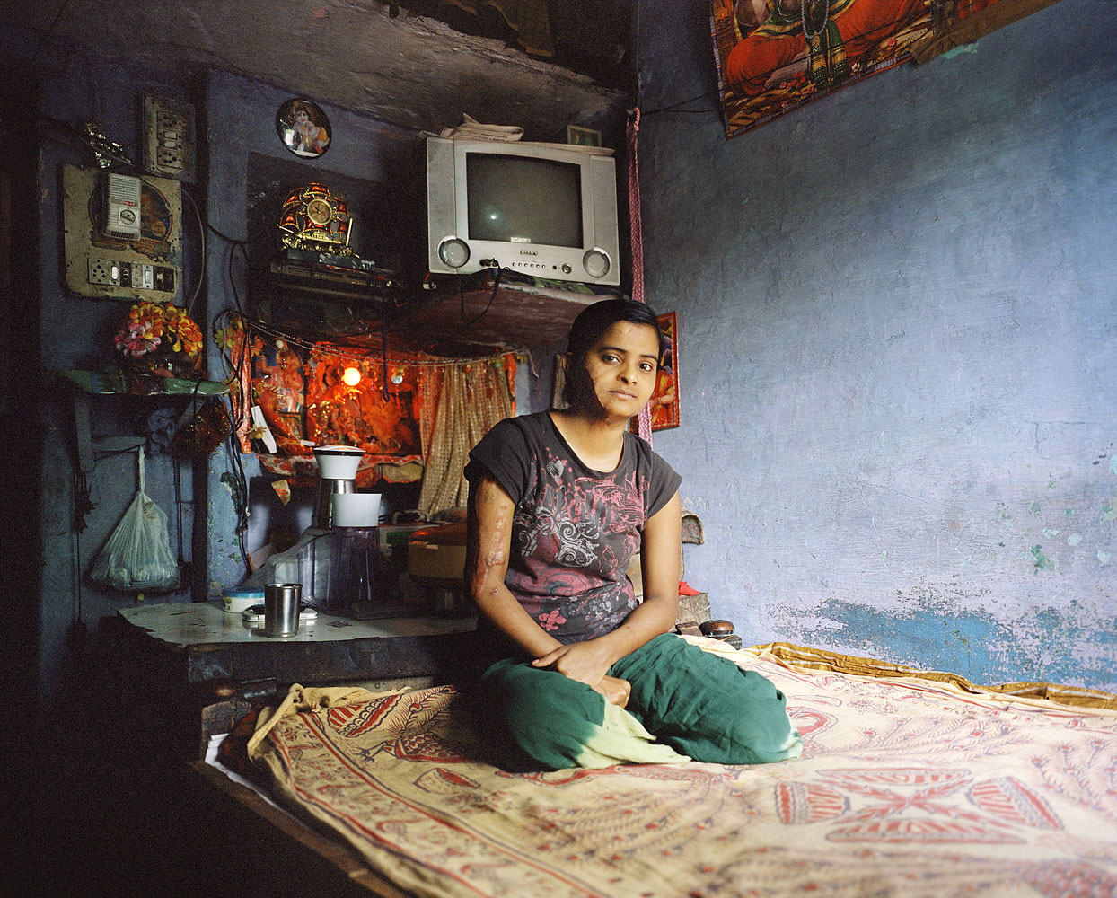 Sapna, 21, Acid attack activist