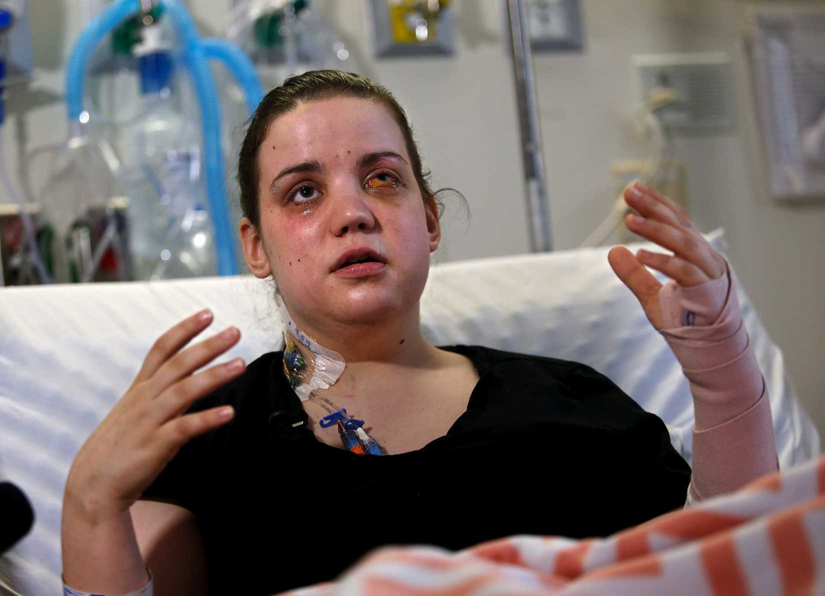 Washington mudslide survivor Amanda Skorjanc, 25, talks to the media while sitting in her hospital bed on Wednesday, April 9, 2014, in Seattle.