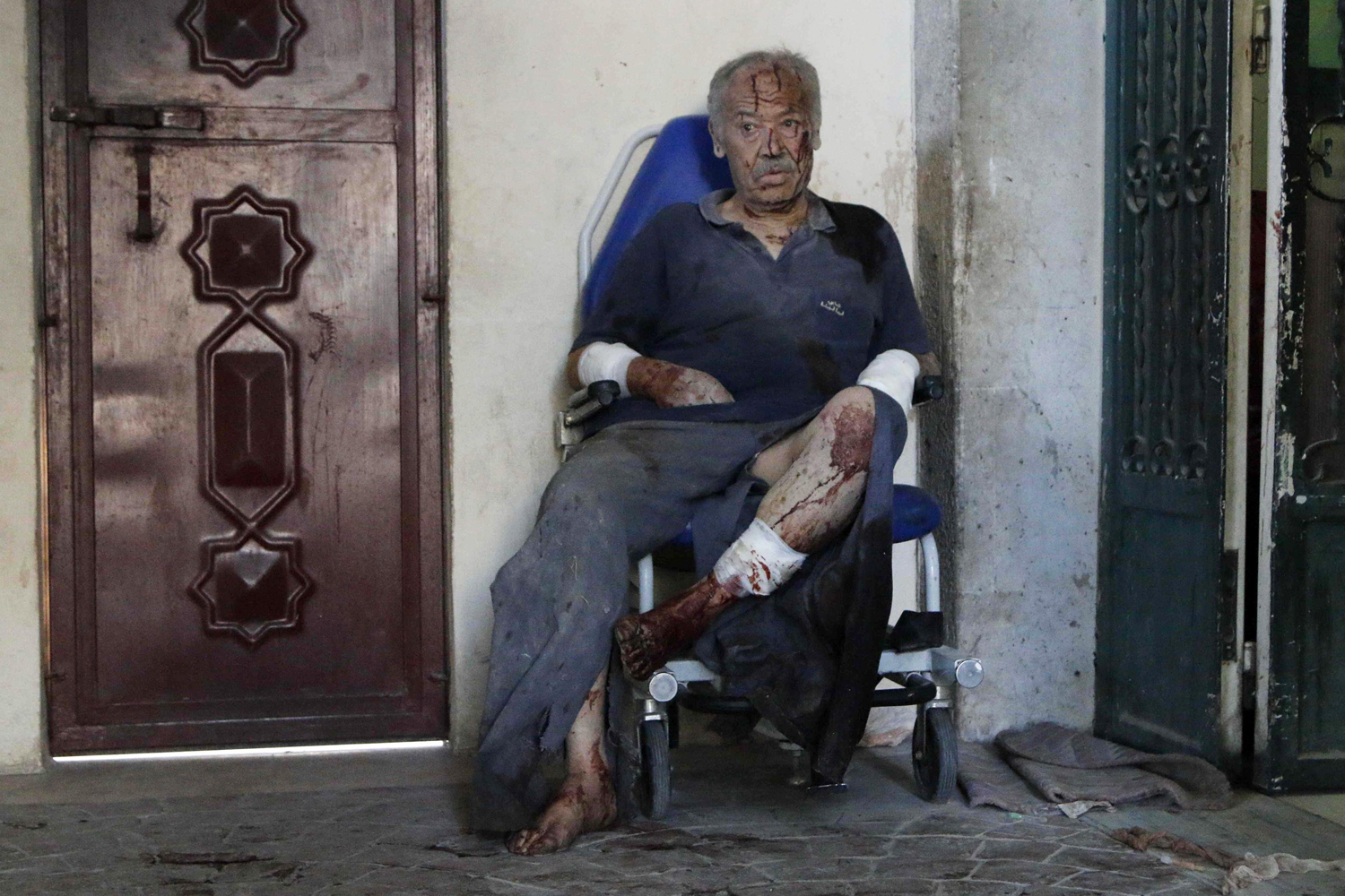 May 1, 2014. An injured man waits for medical attention after, according to activists, two barrel bombs were thrown by forces loyal to Syria's president Bashar Al-Assad in Hullok neighbourhood of Aleppo.