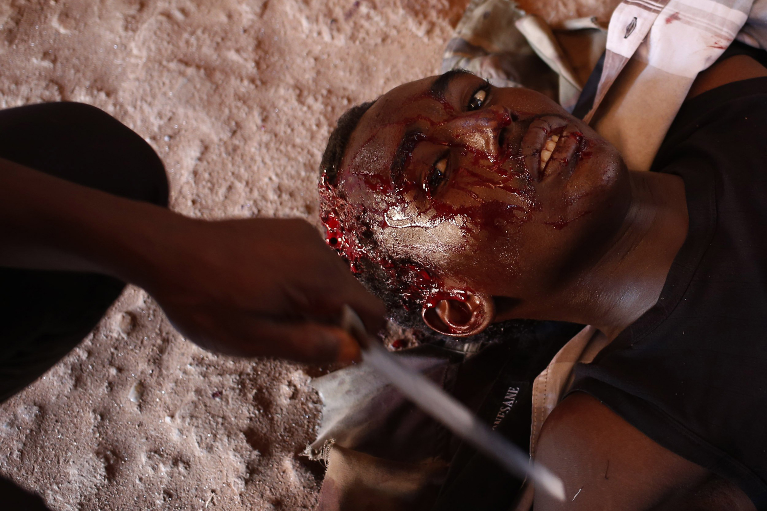 May 24, 2014. A Seleka fighter injured by a mortar shell fired by French soldiers lies in Bambari.
