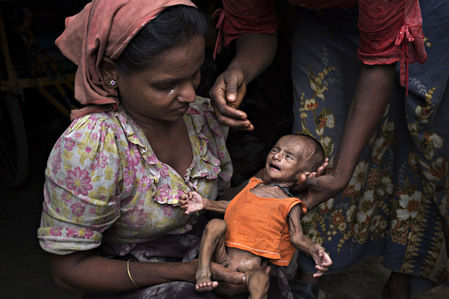 May 6, 2014. Rosheda, 20, holds her malnourished child, 2 months old, in front of her hut in Sittwe, Burma. She is too poor to afford enough food and the child will likely die without aid.