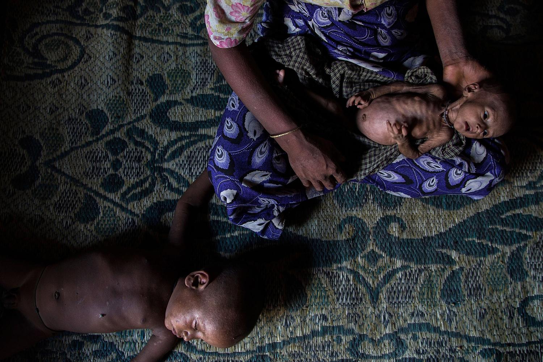 May 10, 2014. Rosheda Bagoung holds her malnourished child inside a tent at Dar Paing refugees camp in Sittwe, Burma.